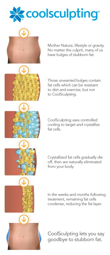 CoolSculpting Blog
